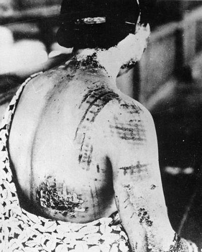 Foto: Lidé, kteří v Hirošimě nebo Nagasaki dostal velkou dávku radiace, měly také vážné popáleniny. / U.S. National Archives and Records Administration